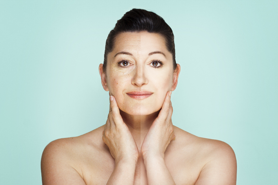 Neck Lift Procedure – Definition, Preparation, Steps, And Recovery