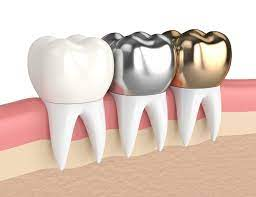 Dental Crowns: What are the Different Types?