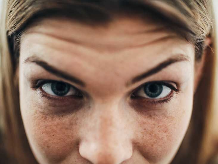 DO YOU KNOW WHY THE AREA AROUND YOUR BROW BONE HURT?